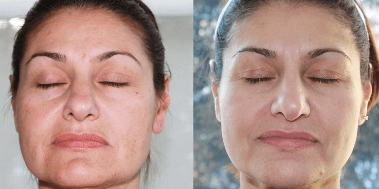 Glycolic Peel Banner